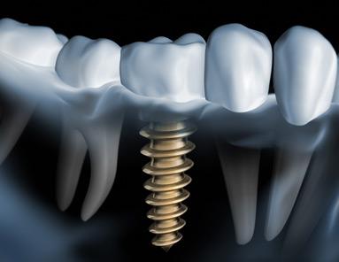 implantologie-implantate-goettingen