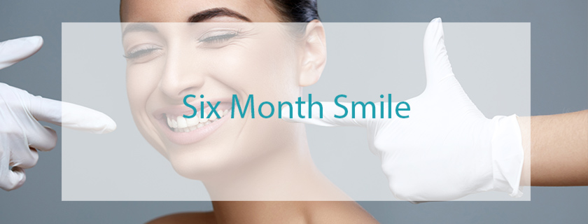 six-month-smile